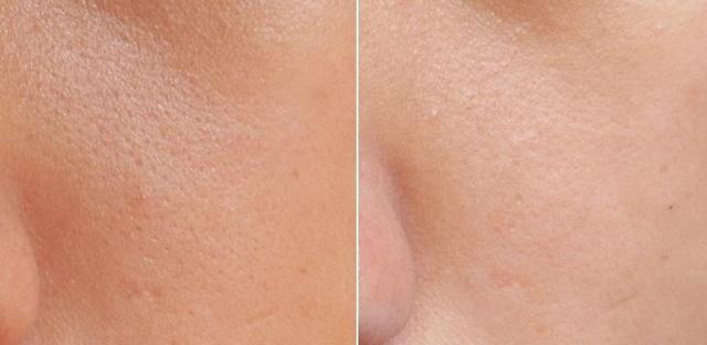 Thu nhỏ lỗ chân lông giúp da hoàn hảo hơn