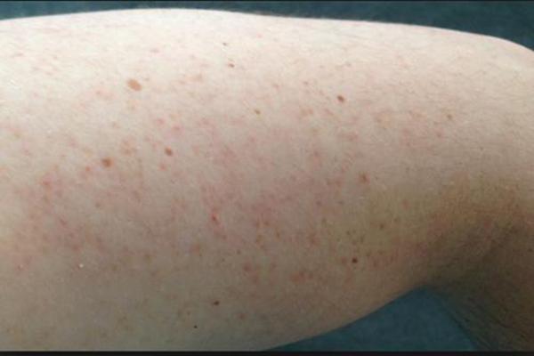 Bệnh viêm lỗ chân lông ở bắp tay ảnh hưởng trực tiếp đến sức khỏe