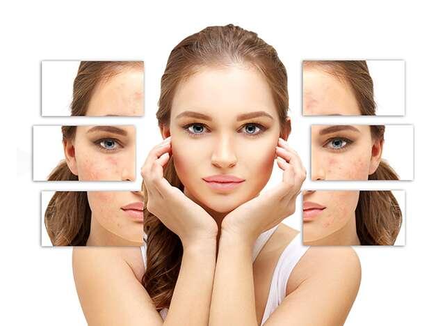 đường làm hỏng làn da của bạn