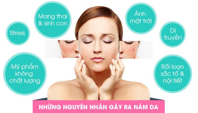 nguyen-nhan-gay-nam-da