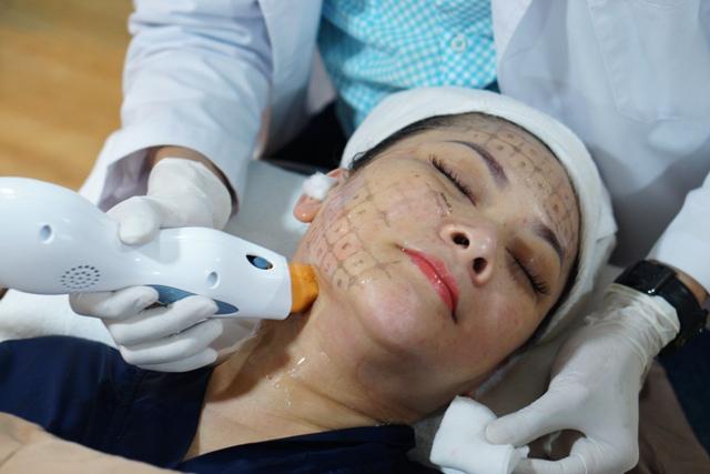 Phương pháp nâng cơ căng da Ultra Thermage