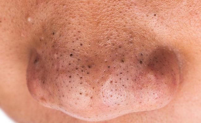 Tìm hiểu về mụn đầu đen ở mũi