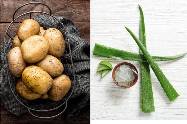 Cách trị mụn trứng cá bằng nha đam + khoai tây