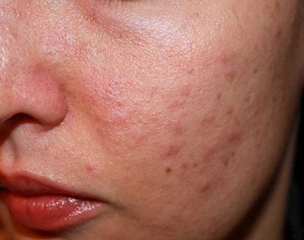 Nguyên nhân da mặt sần sùi, lỗ chân lông to